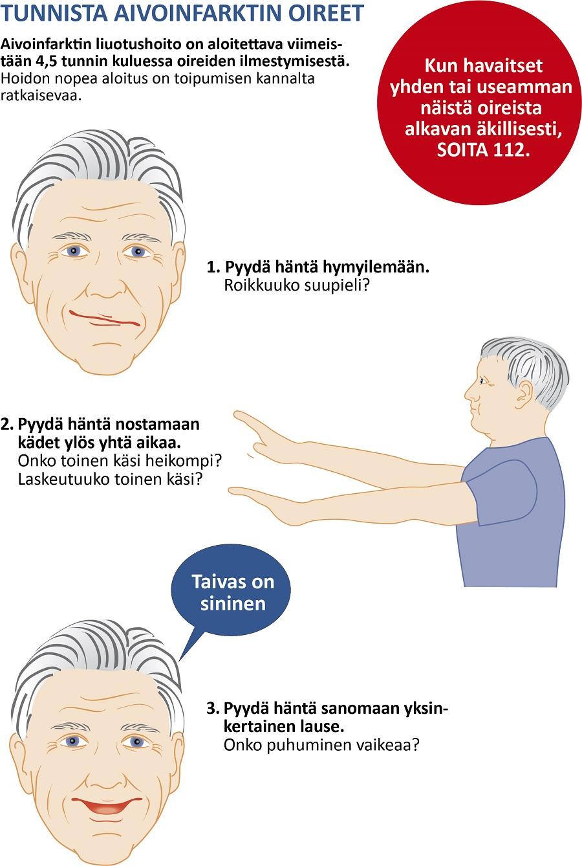 Aivoverenkiertohäiriö Hoito