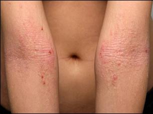 atooppinen ihottuma selässä