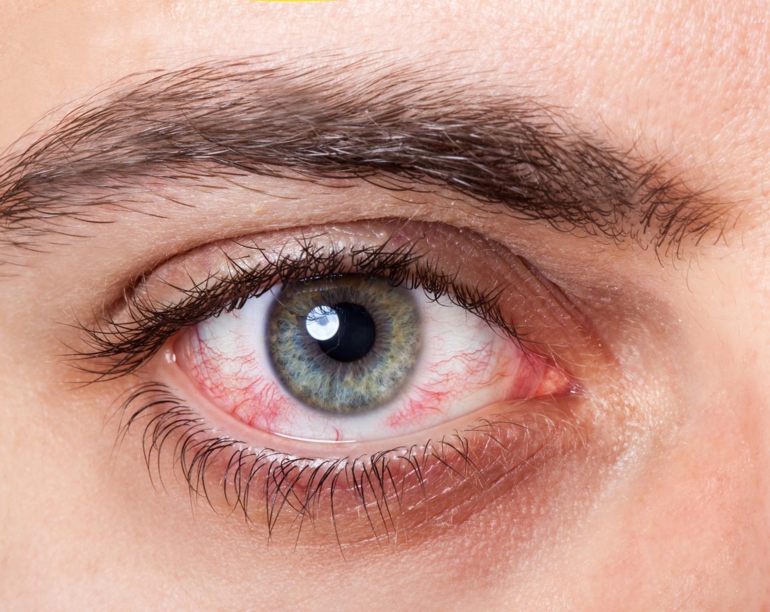 silmäkuopan alueen tulehdus