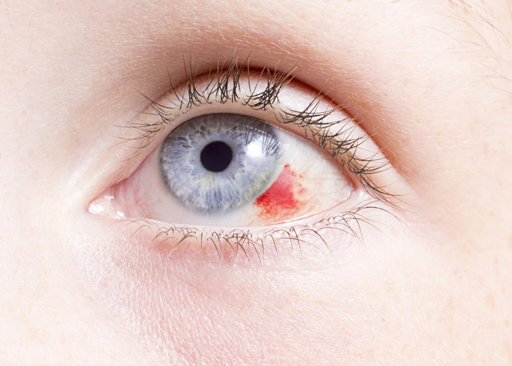 silmässä haava