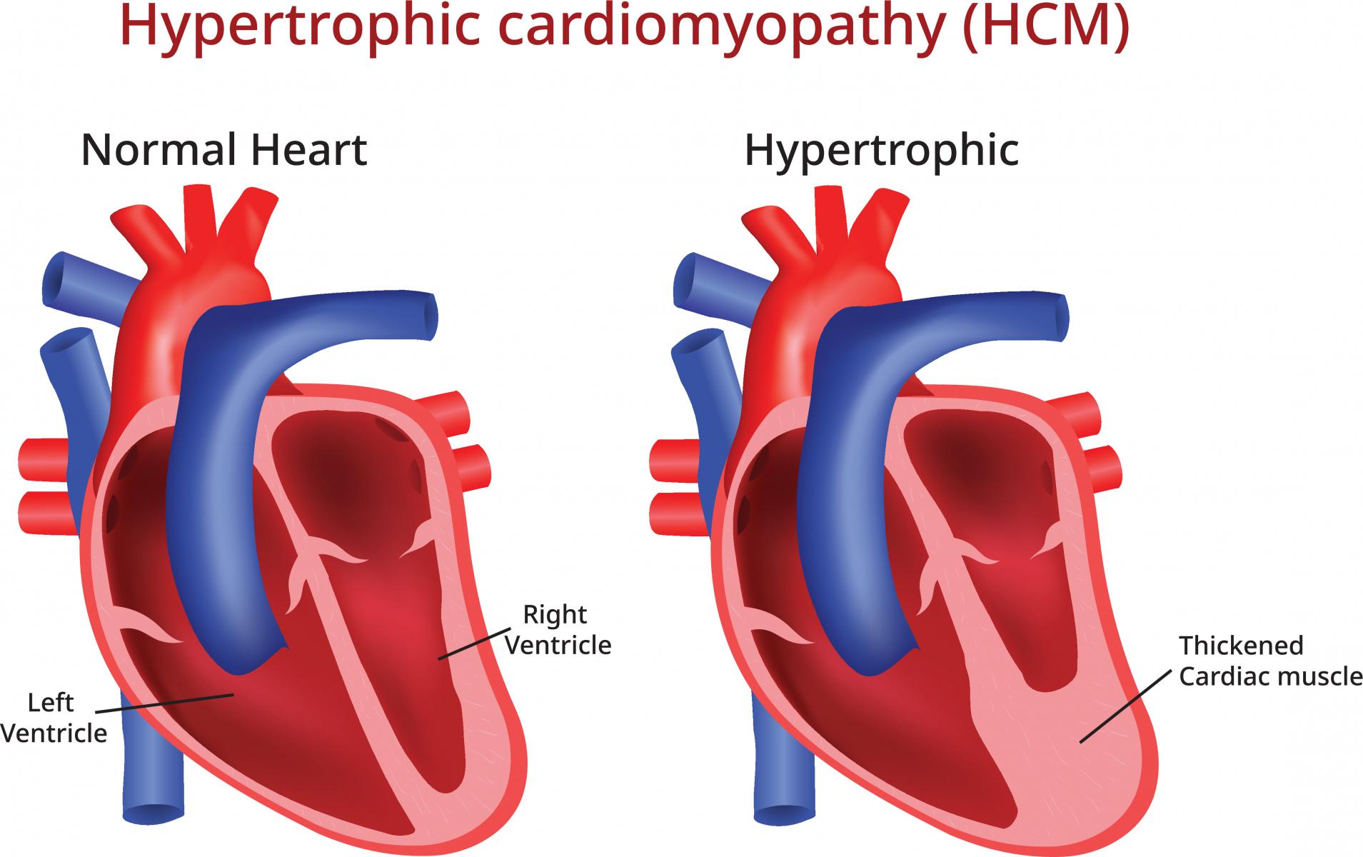 Trabekuloiva Kardiomyopatia