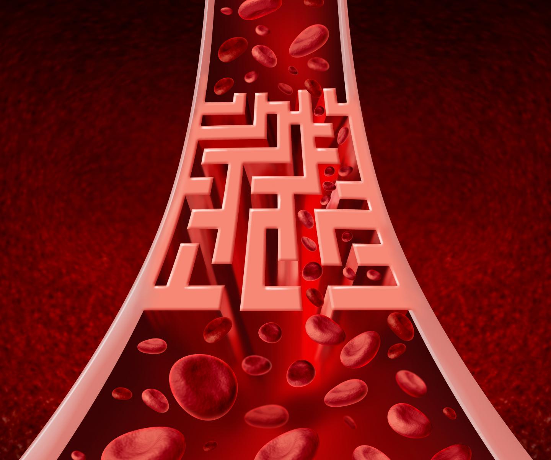 Yleisimmät Sydänsairaudet